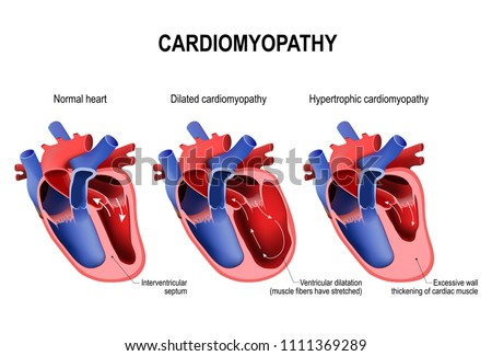 Types Of Heart Diseases Hypertrophic Cardiomyopathy And Dilated Healthy With