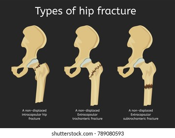 Types of hip fracture. Non-displaced intracapsular, extracapsular trochanteric and subtrochanteric fractures. Vector illustration.