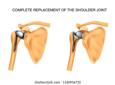 the types of prosthesis of shoulder