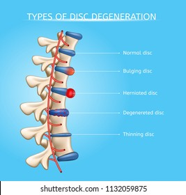 Types of Spinal Disc Degeneration Vector Medical Scheme with Normal, Bulging, Herniated, Degenerated and Thinning Discs on Human Vertebral Column Illustration. Spinal Disc Diseases Orthopedic Concept