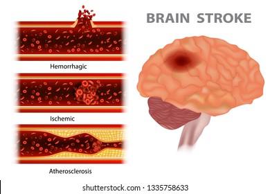 Types of stroke: Atherosclerosis, Ischemic, Hemorrhagic