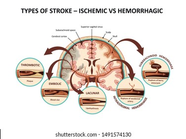 Types of stroke – ischemic vs hemorrhagic