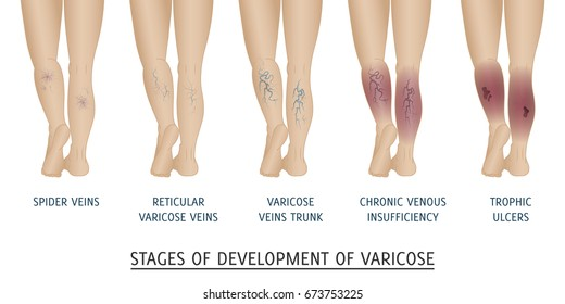 Types of varicose veins in women. Stages of development of varicose veins, vector illustration