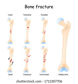 Typical bone fractures: Linear, Transverse, Complete, Compound, Spiral, and Comminuted. Healthy femur and leg fracture in different stages. Vector diagram for medical use