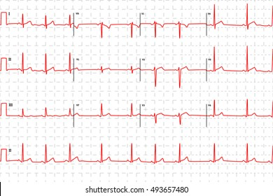 Typical human electrocardiogram, red graph with marks on white