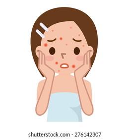 Ugly problem skin girl