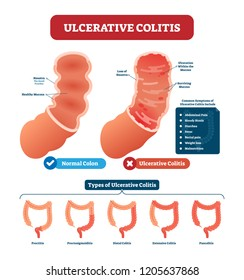 Ulcerative colitis vector illustration. Labeled anatomical infographic with structure, symptoms and types. Haustra and mucosa location. Healthy and disordered comparison.