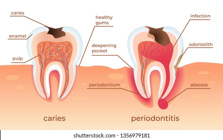 Unhealthy Teeth Stand in Raw in Gums. Tooth Decay Cross Section with all Parts. Caries Holes, Periodontitis Dentistry Aid Infographics on White Background. Flat Vector Illustration. Horizontal Banner.