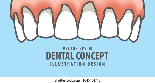 Upper Banner Periodontitis human gum inflammation illustration vector on blue background. Dental concept.