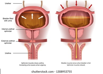 Urinary urgency bladder anatomy, 3d vector illustration
