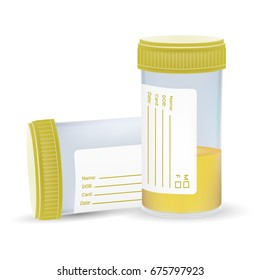 Urine Test In A Plastic Jar Isolated On A White Background. Realistic Vector Illustration.