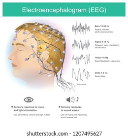 The use of electrodes to read small electromagnetic waves from the human brain.