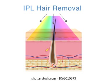 Using IPL light for hair removal on human skin. Illustration about beauty technology.