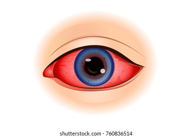 Uveitis symptoms or Eye Inflammation isolated on white. Illustration about of vision problem.