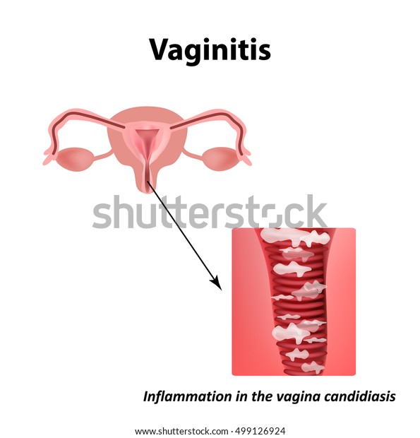 Overview of vaginitis