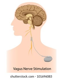Vagus nerve stimulation therapy used as treatment for epilepsy, depression and obesity