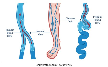 VARICOSE VEIN AND NORMAL VEIN ILLUSTRATION VECTOR