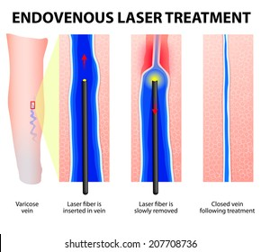 Varicose Veins. Endovenous Laser Treatment. laser fiber is inserted into the vein through a tiny incision. The catheter delivers laser heat to the vein wall, causing it to heat and seal shut