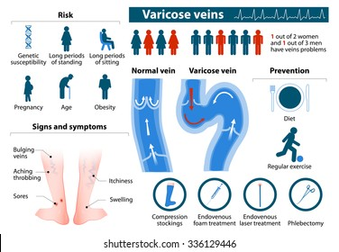 Varicose Veins. health problems. medicine in medical infographics. elements and icons for design. concept