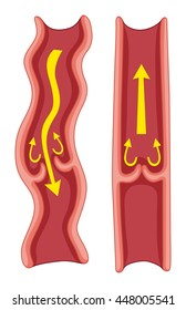 Varicose veins in human body illustration