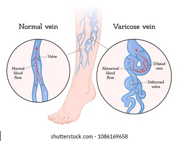Varicose veins poster. Vein enlarged and twisted, blue blood vessel visible through the skin, abnormally swollen leg. Vector flat style cartoon varicose illustration isolated on white background