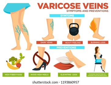 Varicose veins symptoms and preventions poster with info vector