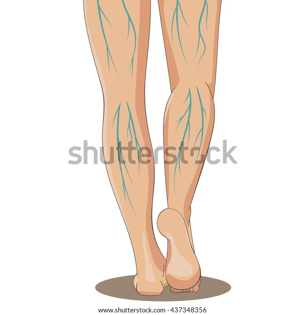 Varicosity. Female legs, back view, with varicose veins. Vector illustration for medicine or cosmetology infographic and design. Cartoon style.