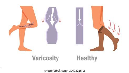 Varicosity. Legs. Vector. Cartoon. Isolated art on white background. Flat
