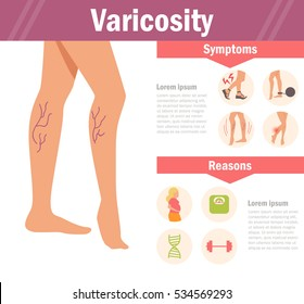 Varicosity. Vector. Cartoon. Isolated. Flat. Illustration for websites, brochures, magazines. Medicine
