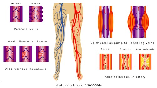 Deep Vein Thrombosis Images Stock Photos Vectors Shutterstock
