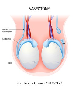 Vasectomy. Surgical procedure for male sterilization. Open-ended method and ligating (suturing). Male reproductive anatomy after vasectomy. Testicles. Vector diagram
