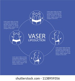 Vaser Liposuction Infographic