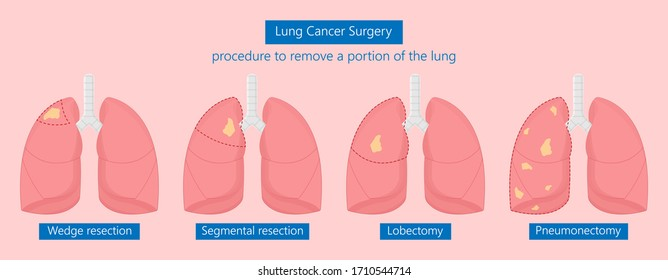 VATS lung cancer treatment sub pus tap cell open tube COPD RATS Wedge treat tumor lobar blebs chest video robot space drain fluid remove tissue biopsy nodule cavity pleura trauma injury surgery