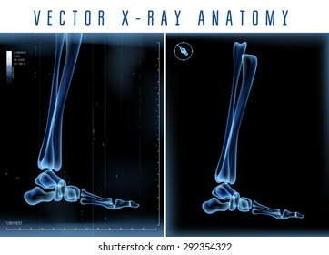 Vector 3D X-ray transparent leg view on a black background