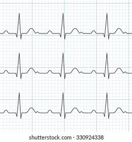Vector cardiogram,flat design