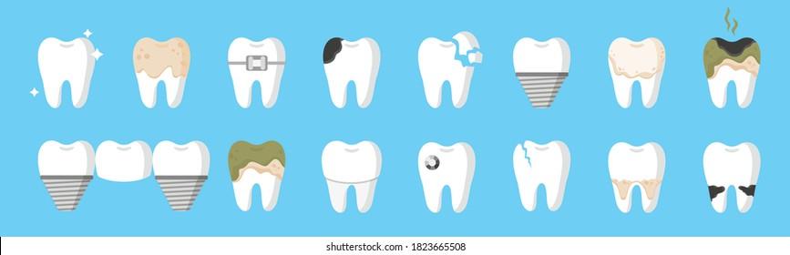 Vector cartoon set of teeth with different types of dental diseases: caries, tartar, plaque, implant, dental bridge, orthodontic braces etc. Dental concept.