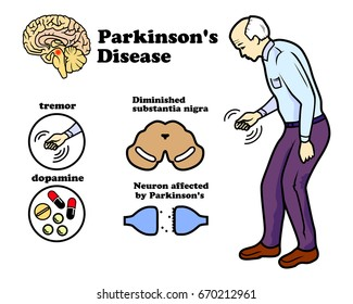 Vector clinic of Parkinson's disease on white background
