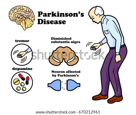 Image result for royalty free images of people with Parkinson's disease