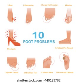 Vector of Common Foot Problems