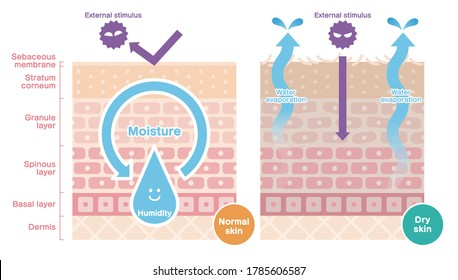 Vector of cross section comparing normal skin and dry skin