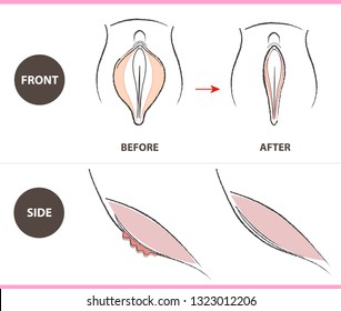 vector design as female genital organs, , vaginoplasty, labiaplasty front and side.