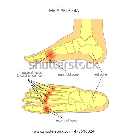 Vector Diagram Forefoot Pain Metatarsalgia Symptom Stock Vector