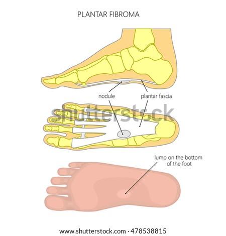 Vector Diagram Plantar Fibroma Fibromatosis Tumor Stock Vector