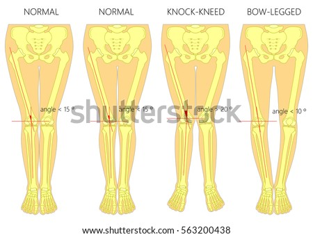 Vector Diagram Shapes Legs Normal Curved Stock Vector Royalty Free
