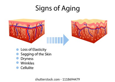 Vector diagram with signs of aging, two types of skin, for cosmetological and healthcare illustrations