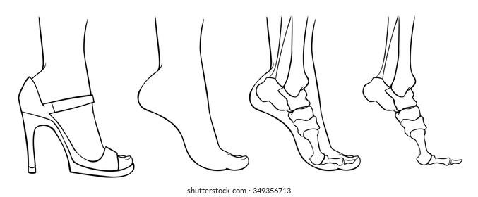 Vector doodle foot on heels, on tiptoes, x-ray, bones