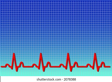 Vector format of an ecg ekg. The waveform is accurate and represents a real life normal ekg