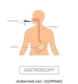 Vector gastroscopy concept. Caucasian woman getting endoscopic examination