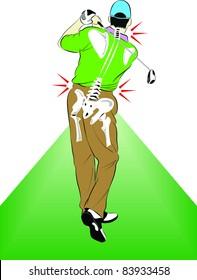 vector Golfer Back pain