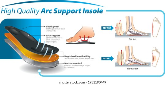 Vector graphic design for three-layered shoe arch support insole -  infographic template.